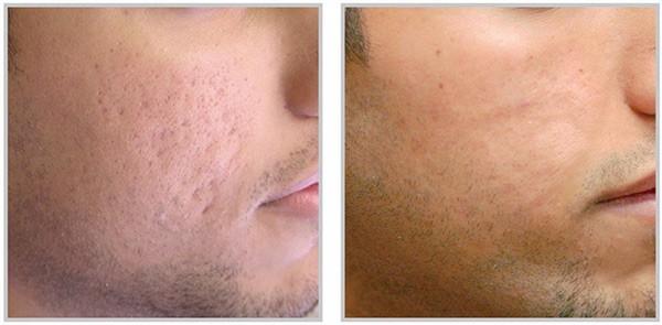Tratamentul PRP pentru acnee, cicatricici, etc