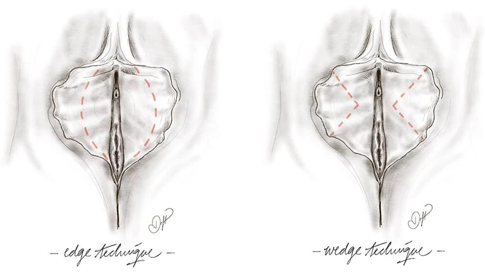 Labioplastie wedge versul edge tehnica, desen