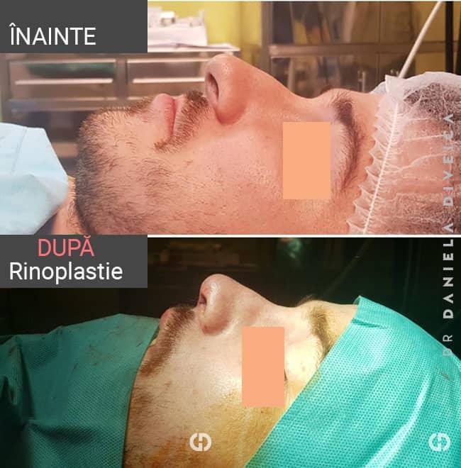 inainte dupa operatie rinoplastie la barbat realizata de dr. Daniela Diveica