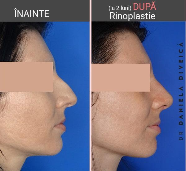 inainte dupa opertia de rinoplastie la femeie realizata de dr. Daniela Diveica