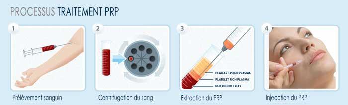 Cum se face tratamentul PRP (terapia vampir cu plasma) - Dr. Daniela Diveică