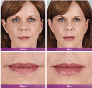 Pacienta reala marirea buzelor cu acid hialuronic (40 ani )