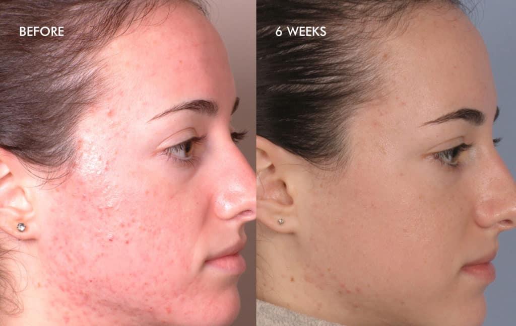 acnee inainte dupa fata dermalinfusion