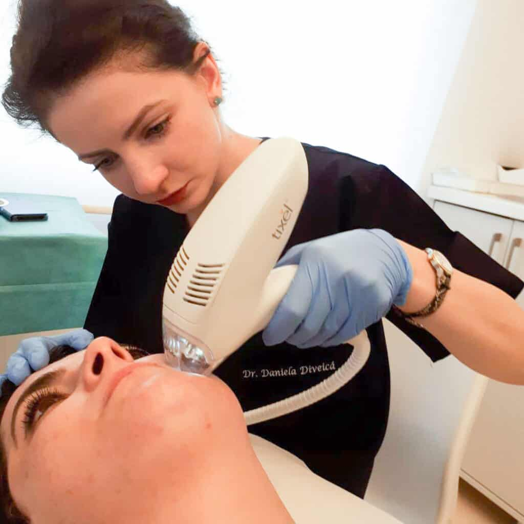 Dr Daniela Diveica - tratament Tixel anti acnee